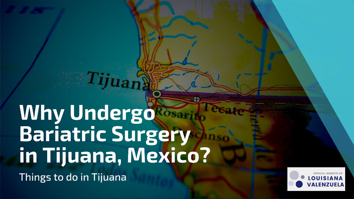 Why Choose Bariatric Surgery in Tijuana Mexico