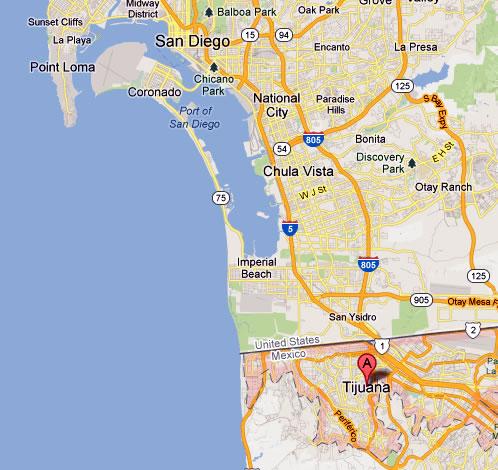 tijuana san diego map. Bariatric surgery in Tijuana.