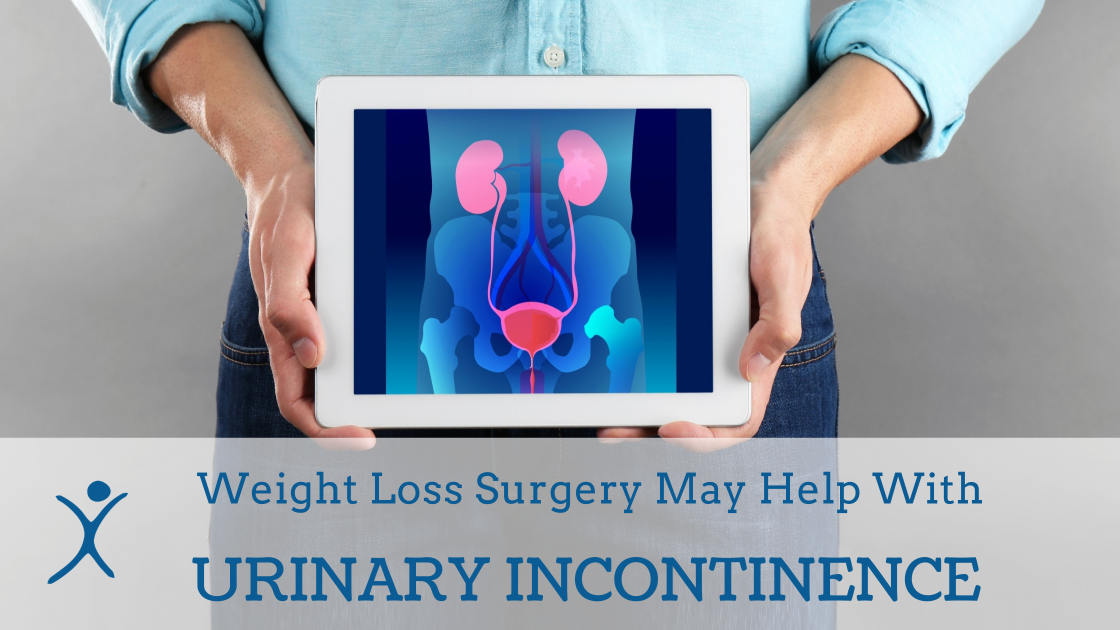 Weight Loss Surgery May Help With Urinary Incontinence for Male and Female Patients