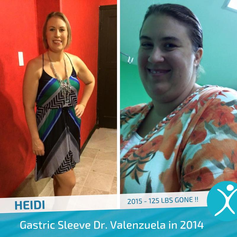 Heidi 2015 Dr V gastric sleeve before after