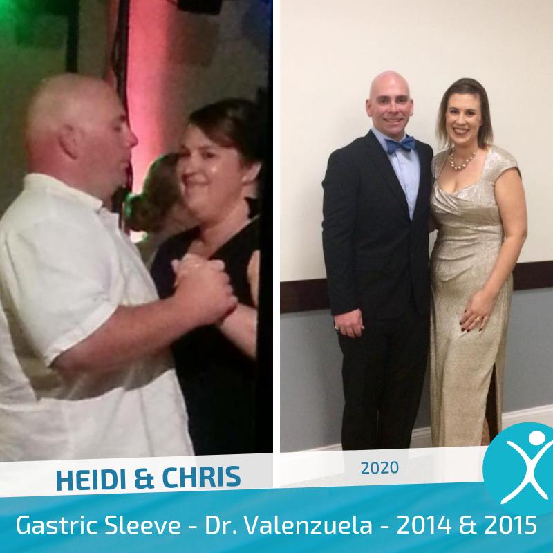 Heidi Chris 2014 2015 Dr V gastric sleeve before after