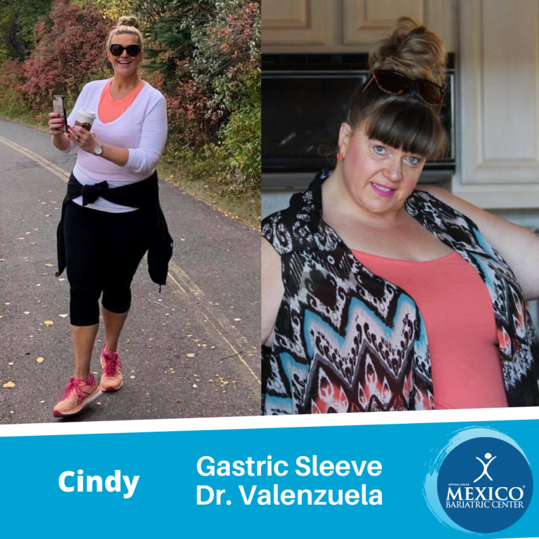 Cindy Gastric Sleeve Before After Dr V Calgary