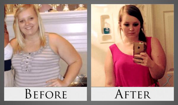 Lauren Before After Photo - Dr. Louisiana Valenzuela Patient