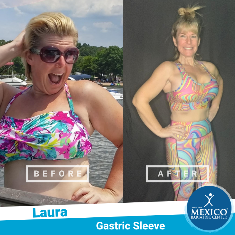 Before and After - Laura Z - Mexico Bariatric Center